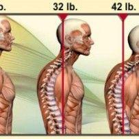 Acupunctuur en schouderklachten amsterdam oost
