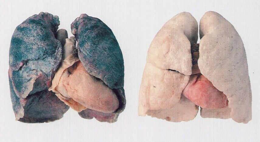 Twijfelt u nog?! Als u deze afbeelding bekijkt, kunt u zien hoe uw longen er na een aantal jaren als niet-roker er weer uit kunnen gaan zien. Het loont dus, ook voor ouderen.