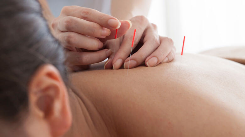 Fara is uw professioneel acupuncturist in Amsterdam Zuid