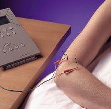 Fara is uw professioneel acupuncturist in Amsterdam Zuid