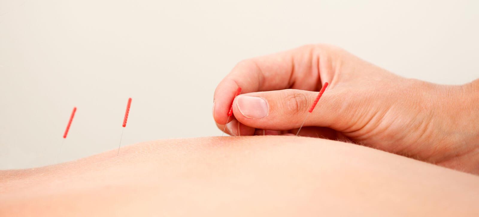 Energiebalans met acupunctuur